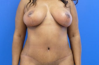 43 y.o. female – Breast Lift via Wise Pattern & abdominoplasty with liposuction of the flanks  after 1229058