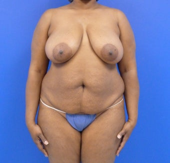 43 y.o. female – Breast Lift via Wise Pattern & abdominoplasty with liposuction of the flanks  before 1229058