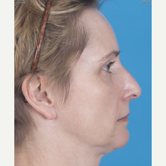 45-54 year old woman treated with Rhinoplasty after 3159574