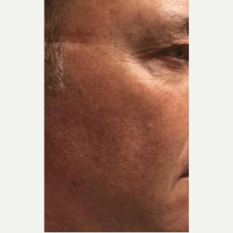 45-54 year old man treated with Microneedling after 2894126