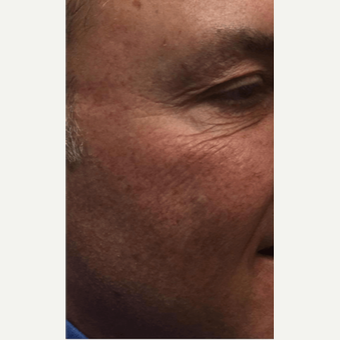 45-54 year old man treated with Microneedling before 2894126