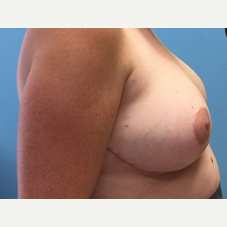 Breast Lift after 3278918