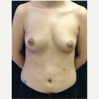 18-24 year old woman treated with Breast Implants before 3103492