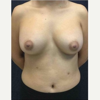 18-24 year old woman treated with Breast Implants after 3103492