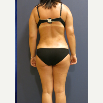 35-44 year old woman treated with Laser Liposuction after 3831728