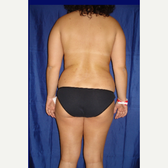 35-44 year old woman treated with Laser Liposuction before 3831728