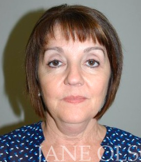 55-64 year old woman treated with Non-Surgical Neck Lift before 2466994