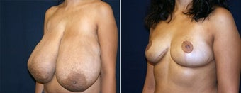 Breast Reduction after 996869