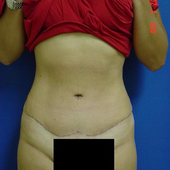 35-44 year old woman treated with Liposuction after 3285161