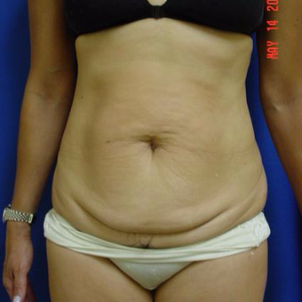 35-44 year old woman treated with Liposuction before 3285161