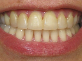 Teeth Whitening & Veneers Before & After Photo before 996253