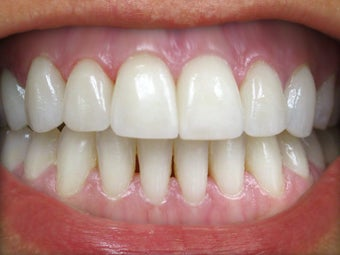 Teeth Whitening & Veneers Before & After Photo after 996253
