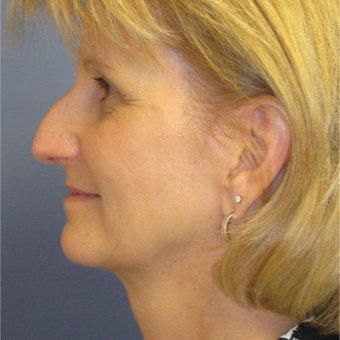 45-54 year old woman treated with Rhinoplasty before 3651673