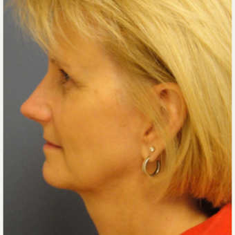 45-54 year old woman treated with Rhinoplasty after 3651673
