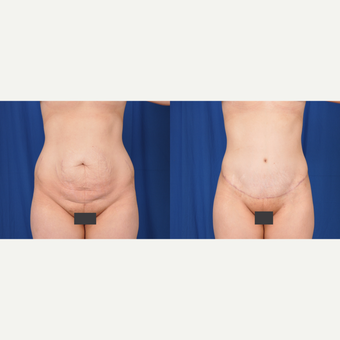 25-34 year old woman treated with Tummy Tuck before 3590378