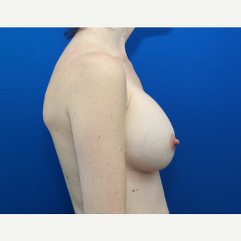 25-34 year old woman treated with Breast Augmentation after 3103885