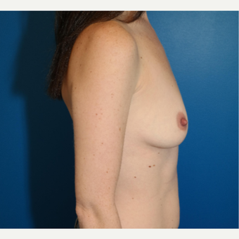 25-34 year old woman treated with Breast Augmentation before 3103885