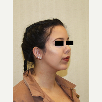 18-24 year old woman treated with Chin Implant after 3684767