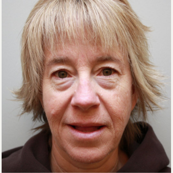 45-54 year old woman treated with Eye Bags Treatment before 3665194