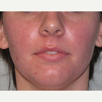 18-24 year old woman treated for acne and acne scarring with CO2 Laser Resurfacing