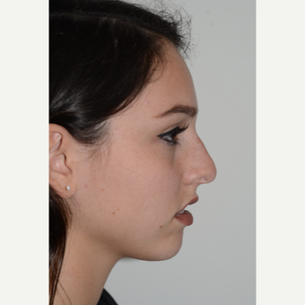 18-24 year old woman treated with Rhinoplasty before 3399936