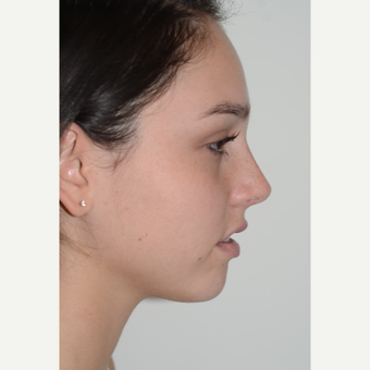 18-24 year old woman treated with Rhinoplasty after 3399936