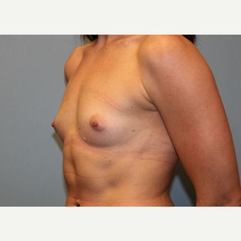 25-34 year old woman treated with Breast Augmentation before 3570378