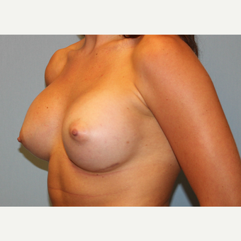 25-34 year old woman treated with Breast Augmentation after 3570378