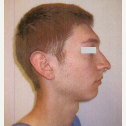 18-24 year old man treated with Rhinoplasty before 3033206