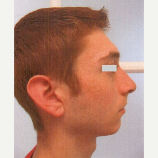 18-24 year old man treated with Rhinoplasty after 3033206