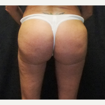 55-64 year old woman treated with Brazilian Butt Lift after 3286347