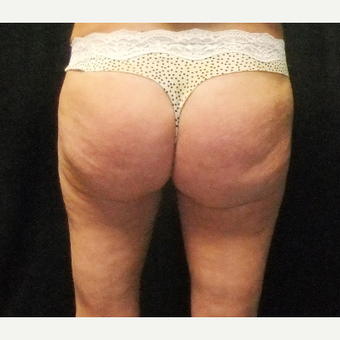 55-64 year old woman treated with Brazilian Butt Lift before 3286347