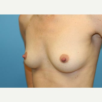 25-34 year old woman treated with Gel Breast Implants 1944742
