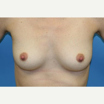 25-34 year old woman treated with Gel Breast Implants before 1944742