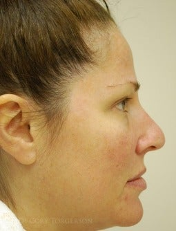 35-44 year old woman treated with Rhinoplasty before 3259850