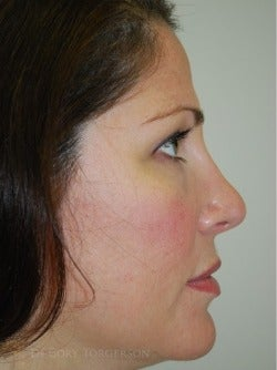 35-44 year old woman treated with Rhinoplasty after 3259850