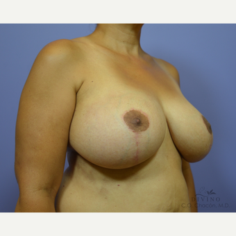 45-54 year old woman treated with Breast Lift with Implants after 3386485