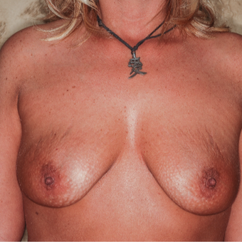 35-44 year old woman treated with Breast Lift with Implants before 3371646