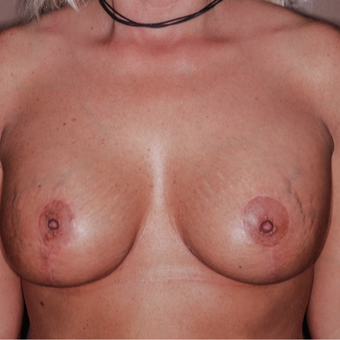 35-44 year old woman treated with Breast Lift with Implants after 3371646
