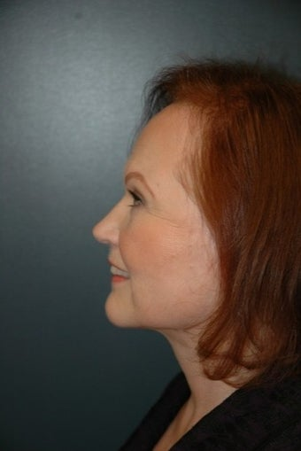 45-54 year old woman treated with Lower Face Lift 1547086