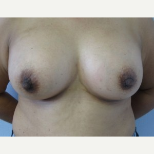 Breast Augmentation after 3054928
