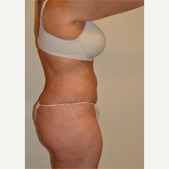 25-34 year old woman treated with Tummy Tuck after 3658513