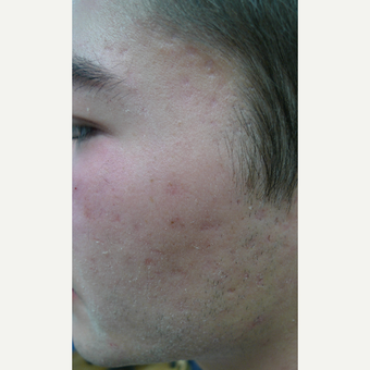 Picosure FOCUS for early acne scars- exception rather than the rule. before 3590684