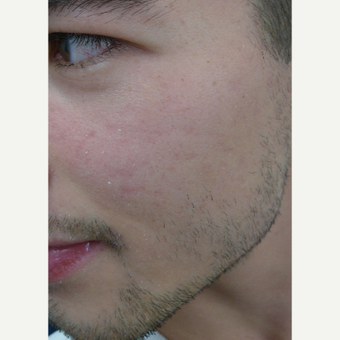 Picosure FOCUS for early acne scars- exception rather than the rule. after 3590684