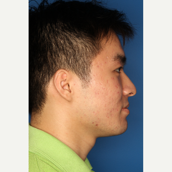 25-34 year old man treated with Acne Treatment after 3709898
