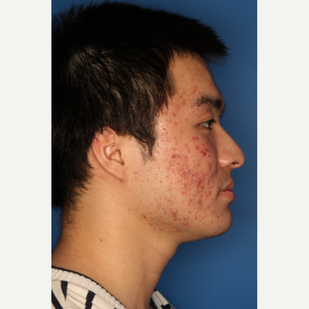 25-34 year old man treated with Acne Treatment before 3709898