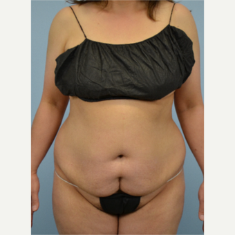 46 year old woman treated with Tummy Tuck before 3432224