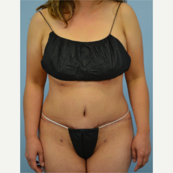 46 year old woman treated with Tummy Tuck after 3432224