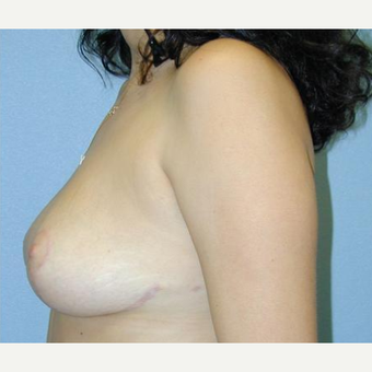 Breast Reduction after 3241625