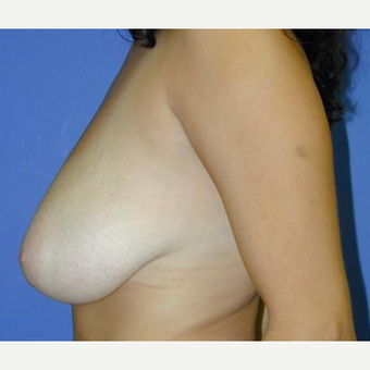 Breast Reduction before 3241625